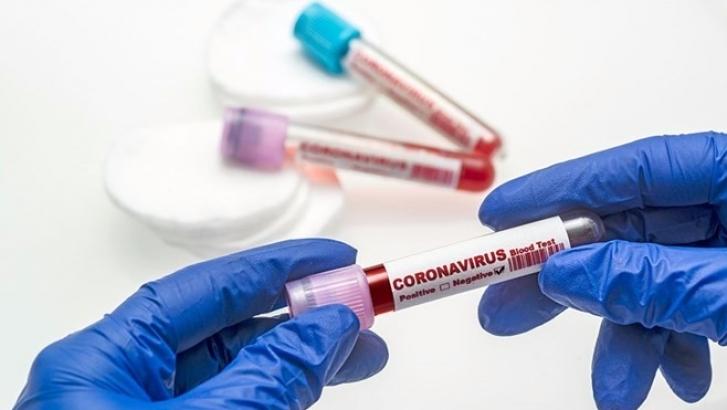 Son 24 saatte korona virüsten 140 kişi hayatını kaybetti